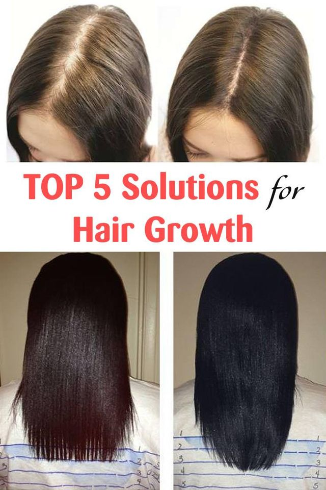 Top 5 Solutions for Hair Growth