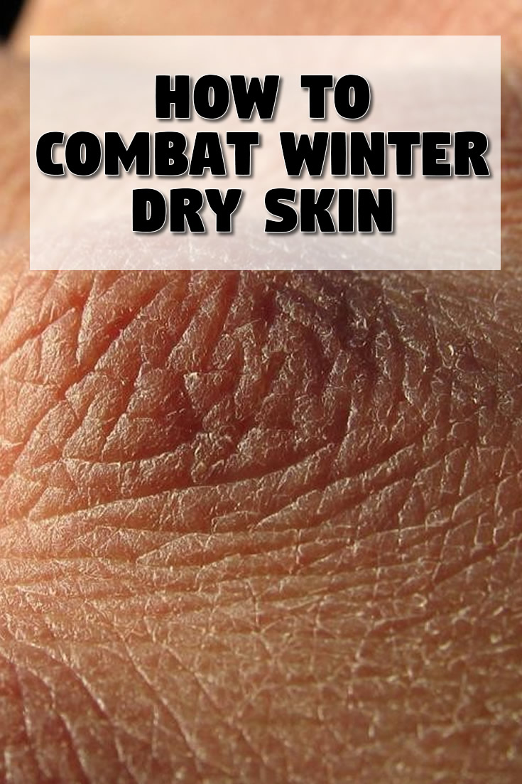 How to Combat Winter Dry Skin