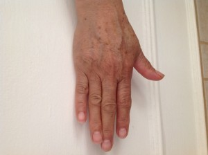 Hyper Pigmentation, How to Prevent it!