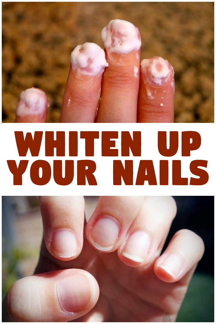 Whiten Up Your Nails