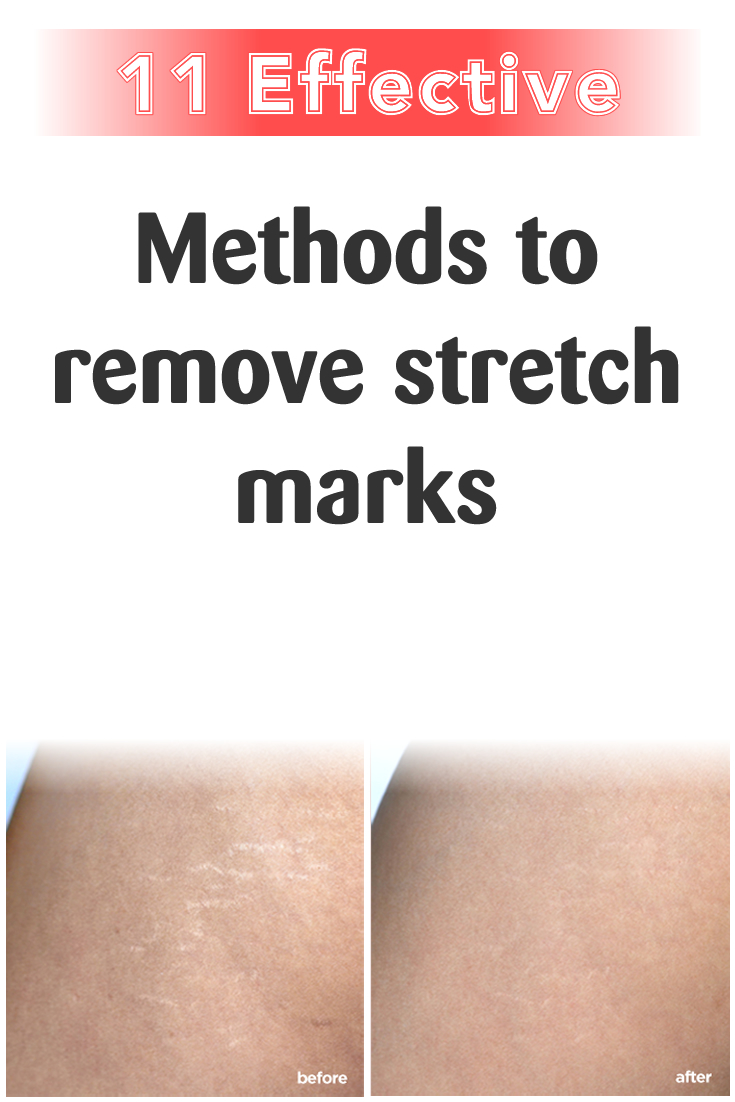 11 effective methods to remove stretch marks