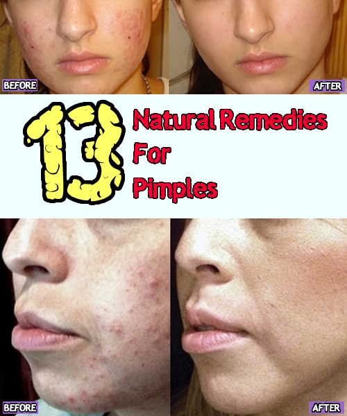 13 Natural Remedies for Pimples