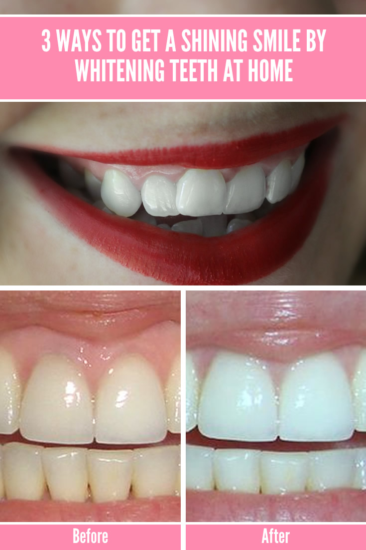 3 Ways To Get A Shining Smile By Whitening Teeth At Home