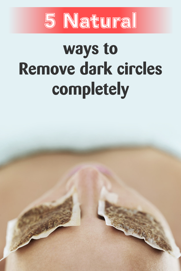 5 Natural ways to remove dark circles completely