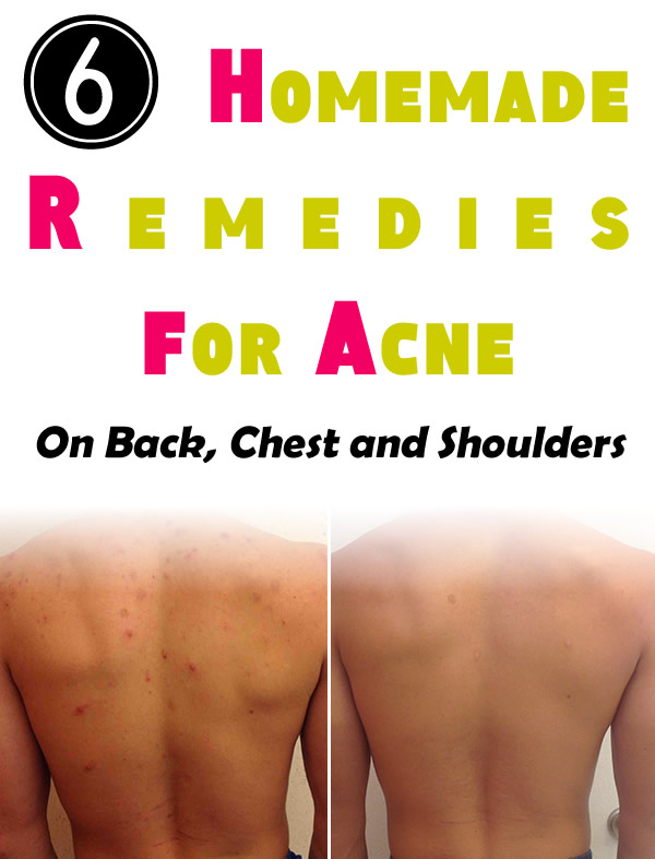 6 Homemade Remedies for Acne on Back, Chest and Shoulders
