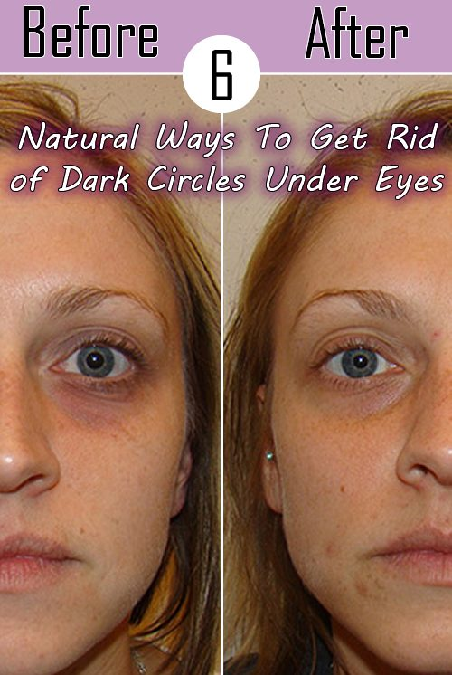 6 Natural Ways To Get Rid of Dark Circles Under Eyes