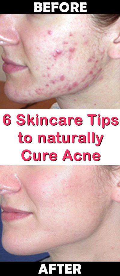 6 Skincare Tips to naturally Cure Acne