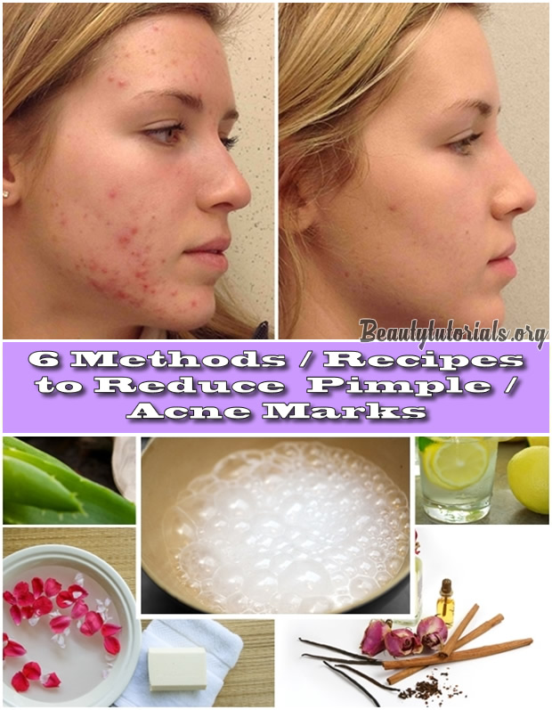 6Methods-Recipes-to-Reduce-Pimple-Acne-Marks