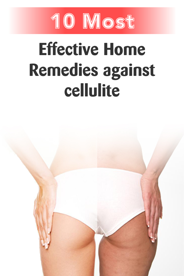 7 Most Effective Home Remedies against cellulite