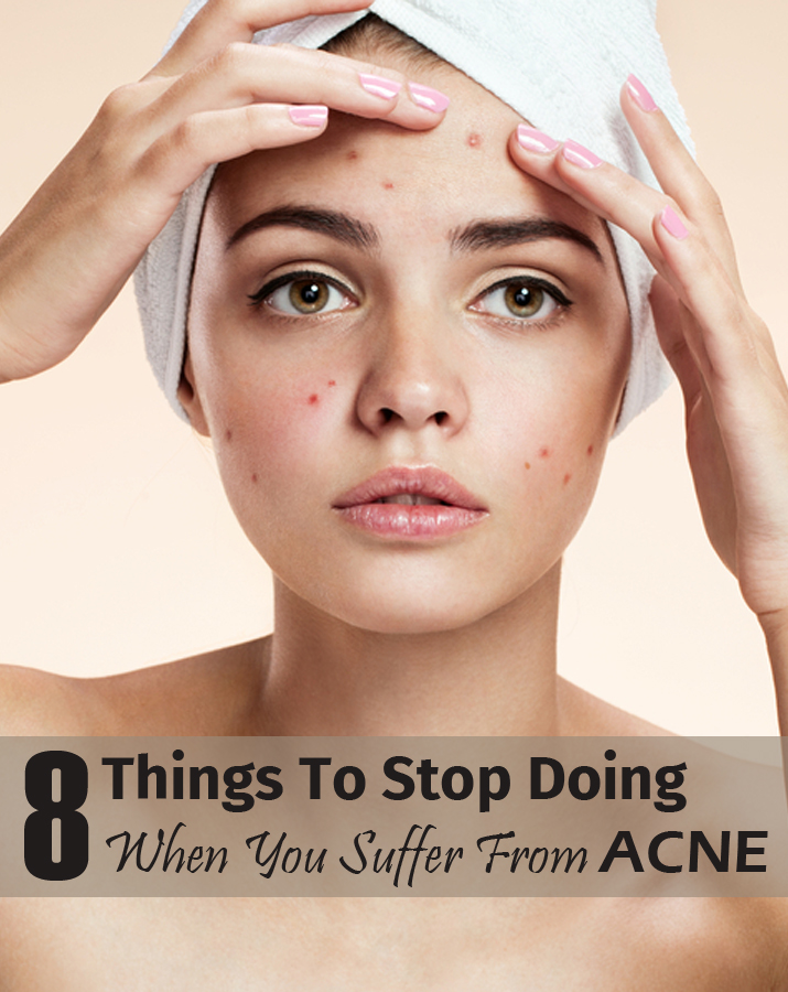 8 Things to Stop Doing when you suffer from acne