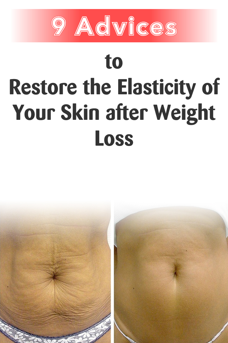 9 Advice to Restore the Elasticity of Your Skin after Weight Loss