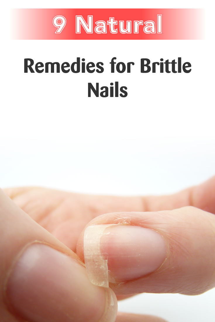 9 Natural Remedies for Brittle Nails