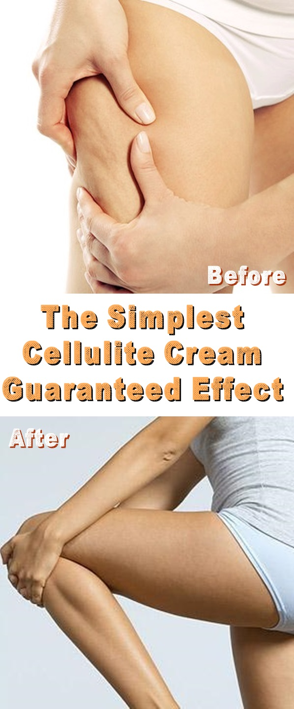 Before and After The Cellulite Cream for your Legs