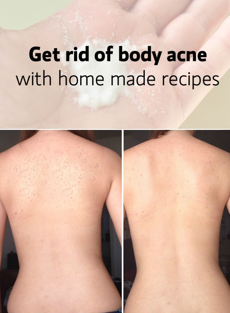 Body acne and treatments
