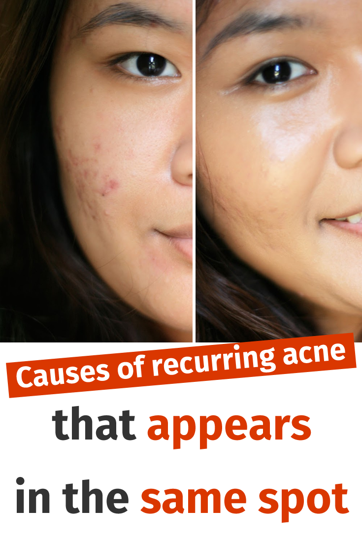 Causes of recurring acne that appears in the same spot