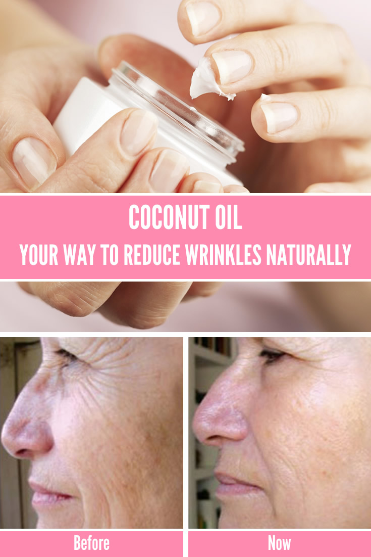 Coconut Oil: Your way to reduce wrinkles naturally