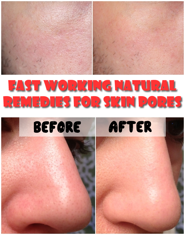 Fast Working Natural Remedies For Skin Pores
