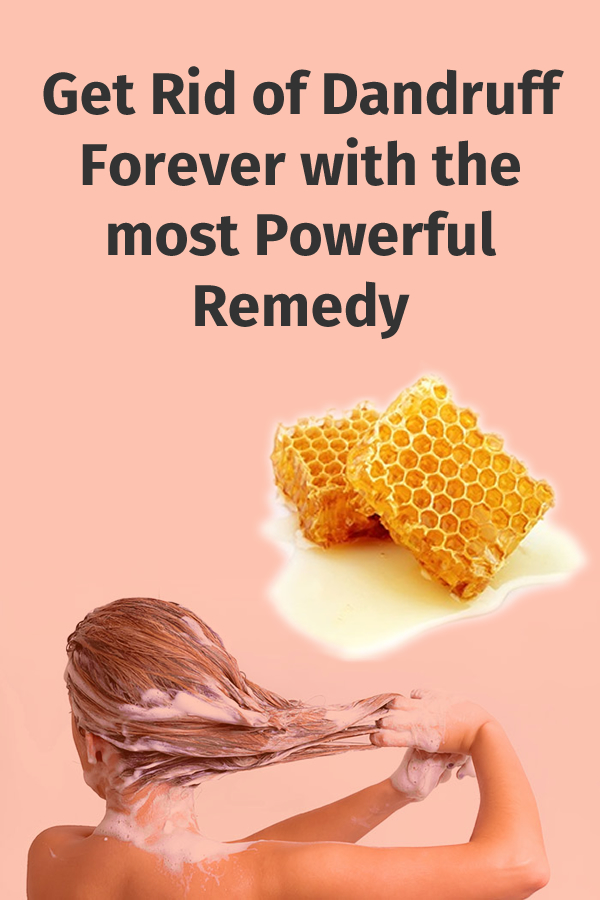 Get Rid of Dandruff Forever with the most Powerful Remedy