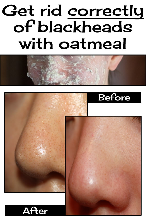 Get rid correctly of blackheads with oatmeal
