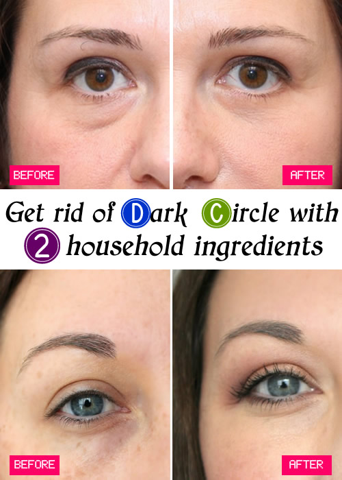 Get rid of Dark Circle with 2 household ingredients
