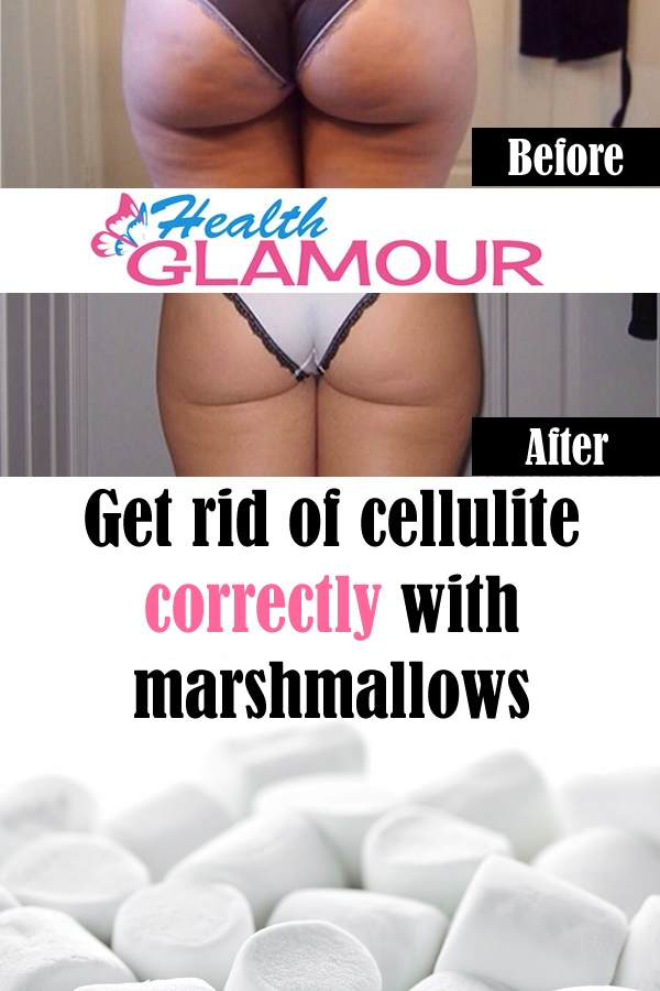 Get rid of cellulite correctly with marshmallows