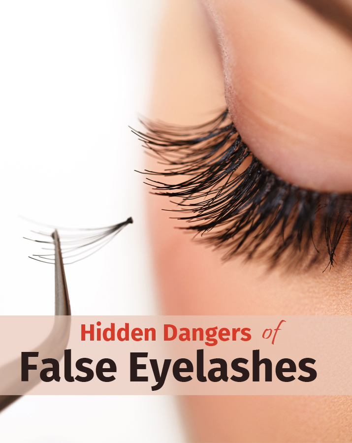 Hidden dangers of false eyelashes
