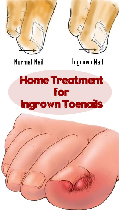Home Treatment for Ingrown Toenails JPEG