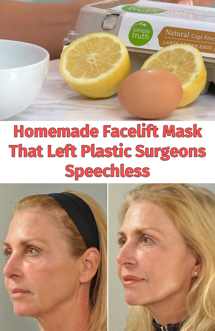 Homemade Facelift Mask That Left Plastic Surgeons Speechless
