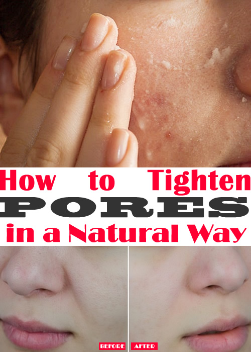 How to Tighten Pores in a Natural Way