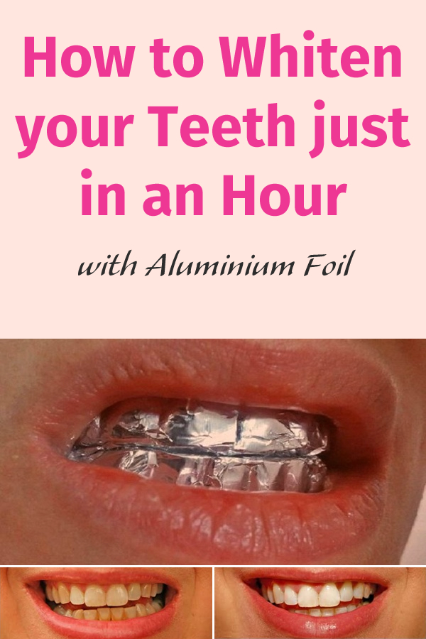 How to Whiten your Teeth just  in an Hour with Aluminium Foil