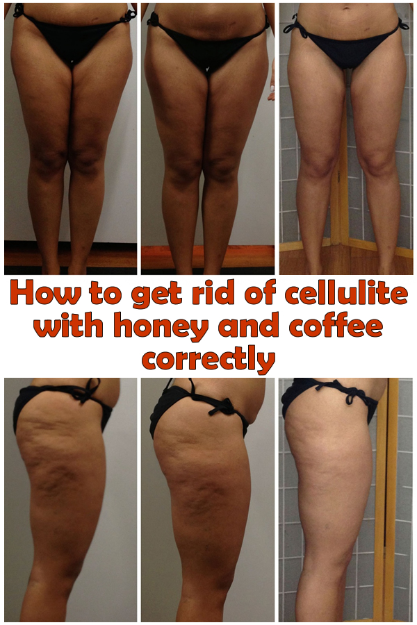 How to get rid of cellulite with honey and coffee correctly