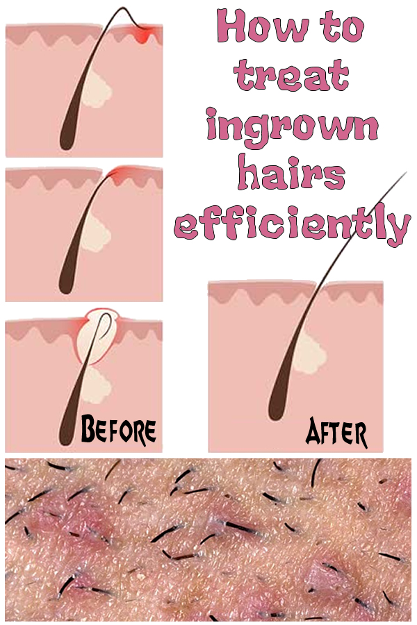 How to treat ingrown hairs efficiently