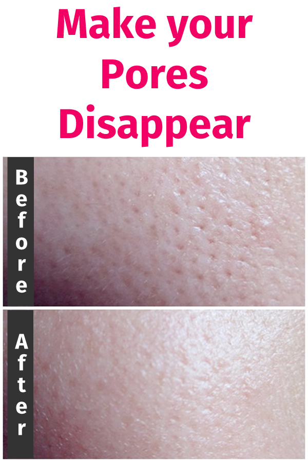 Make your Pores Disappear