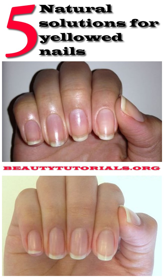 Natural solutions for yellowed nails
