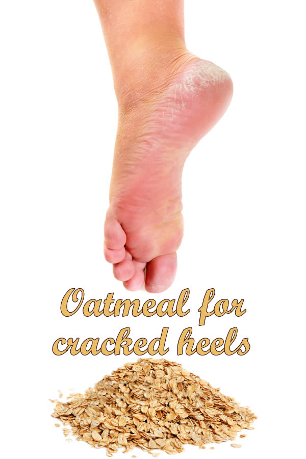 Oatmeal for cracked heels