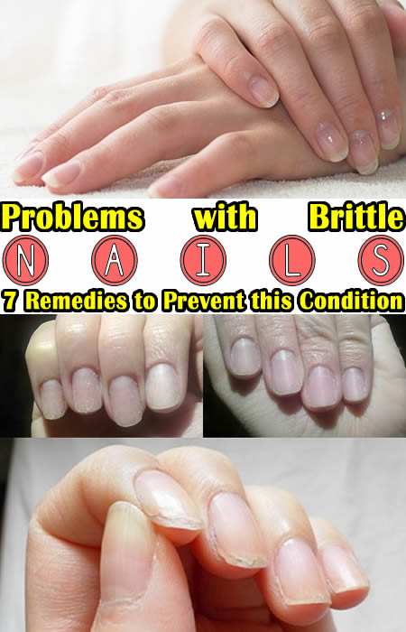 Problems with brittle nails 7 remedies to prevent this condition
