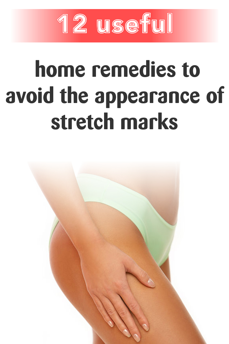 The most useful 12 home remedies to avoid the appearance of stretch marks