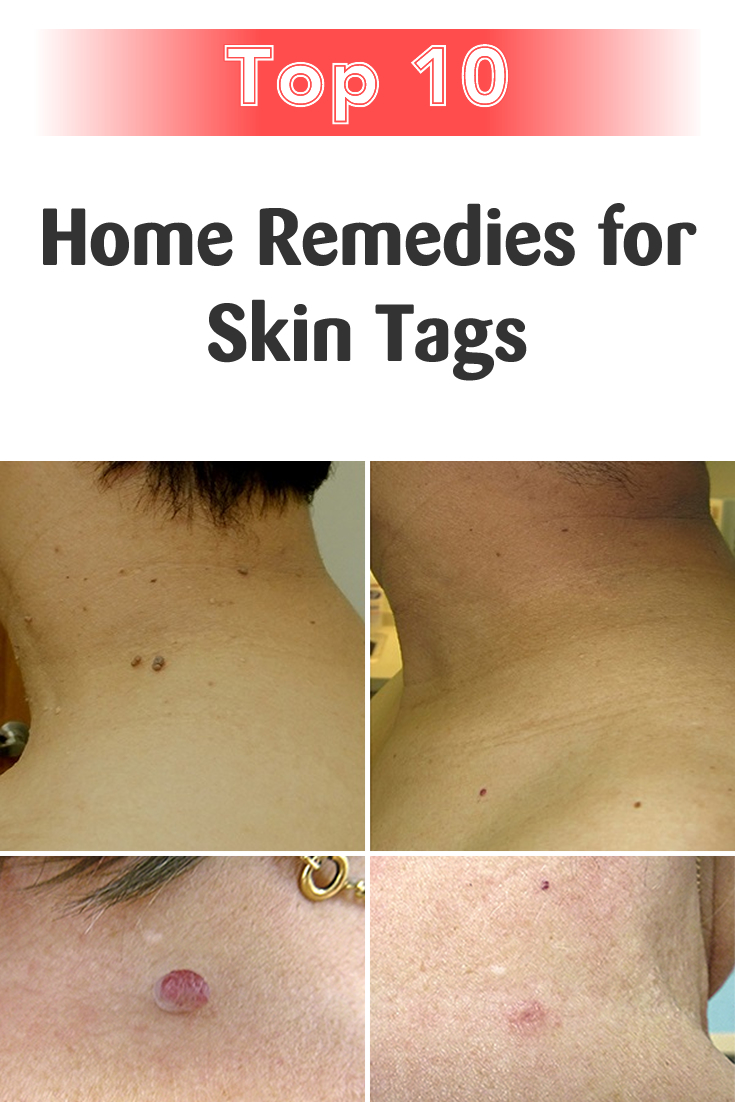 Top 10 Home Remedies for Skin Tags