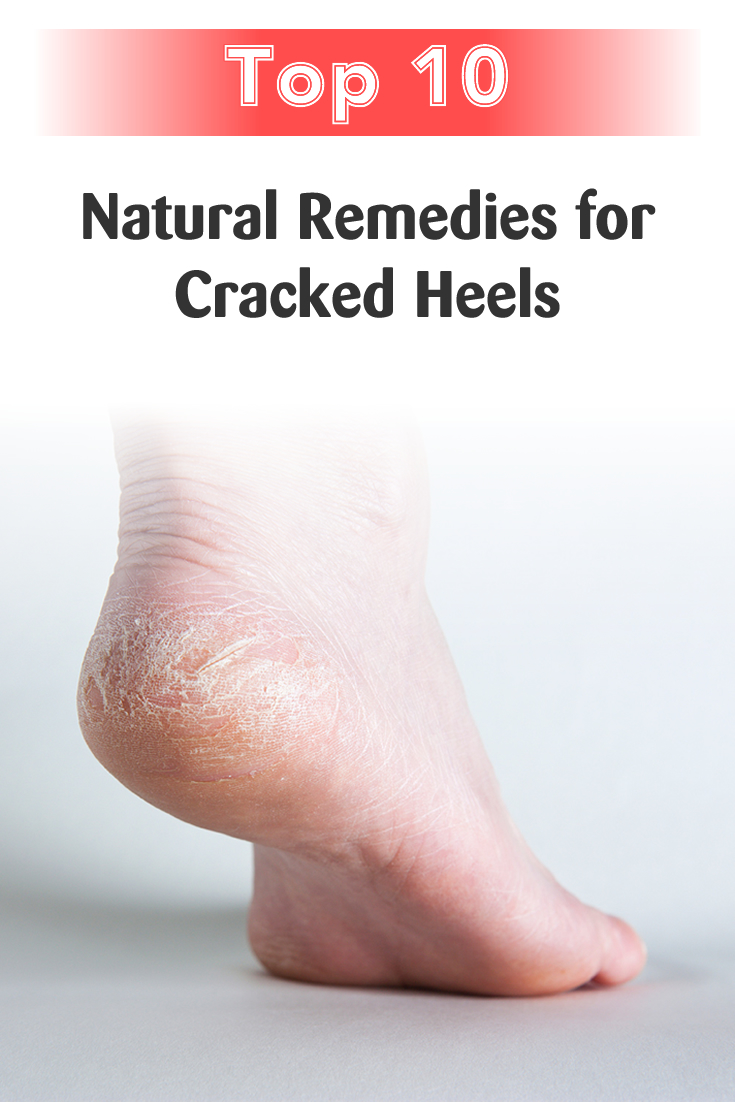 Top 10 Natural Remedies for Cracked Heels
