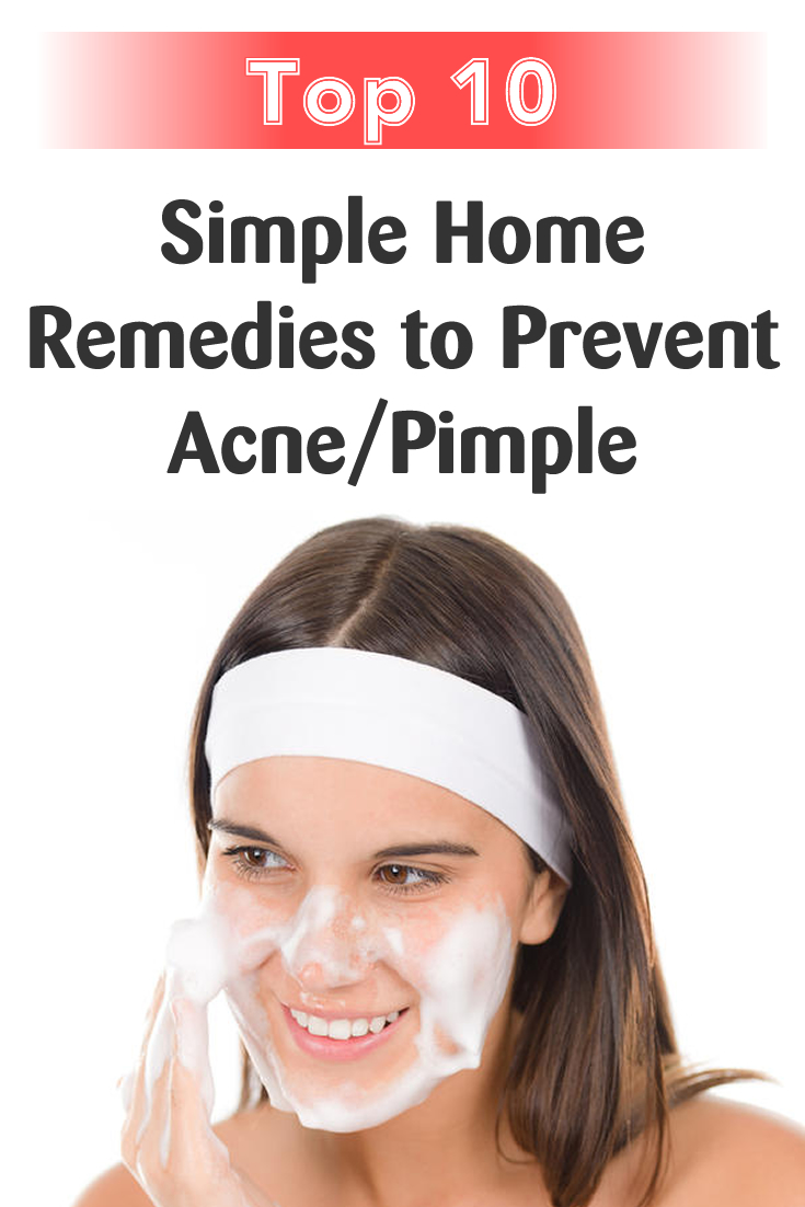 Top 10 Simple Home Remedies to Prevent Acne Pimple