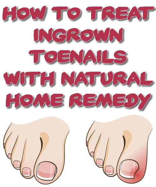 Treating Ingrown Toenails with Natural Home Remedy