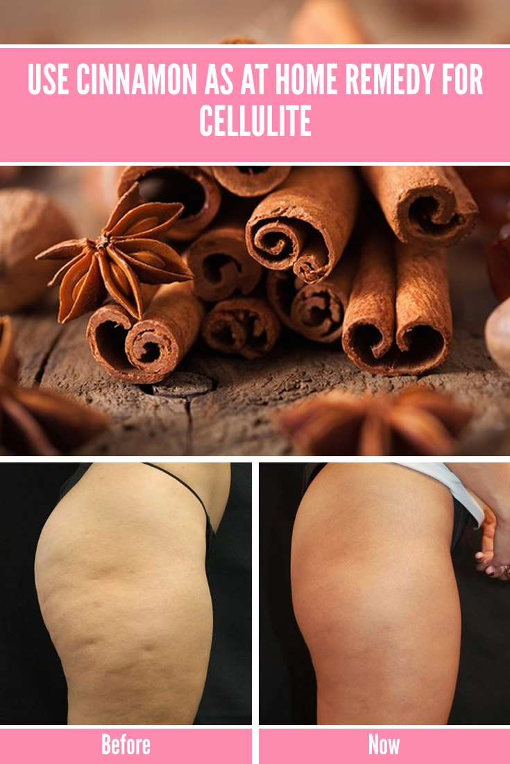 Use Cinnamon As At Home Remedy for Cellulite