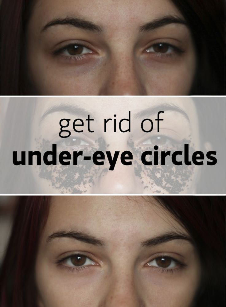 Under eye circles and bags – treatments