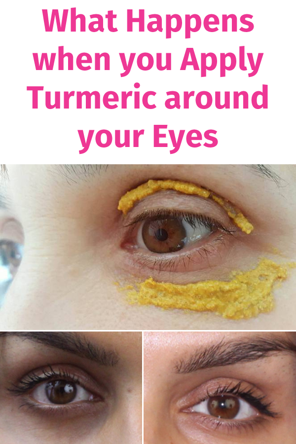 What Happens when you Apply Turmeric around your Eyes